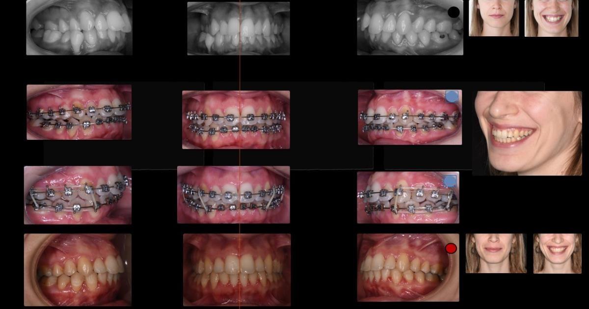 Bases e Fundamentos para Ortodontia Avançada - da prática à clínica